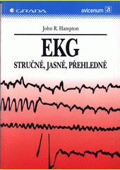 EKG stručně, jasně, přehledně CZ