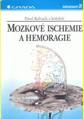 Mozkové ischemie a hemoragie CZ