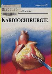 Kardiochirurgie CZ
