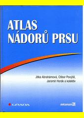 Atlas nádorů prsu CZ