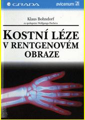 Kostní léze v rentgenovém obraze CZ